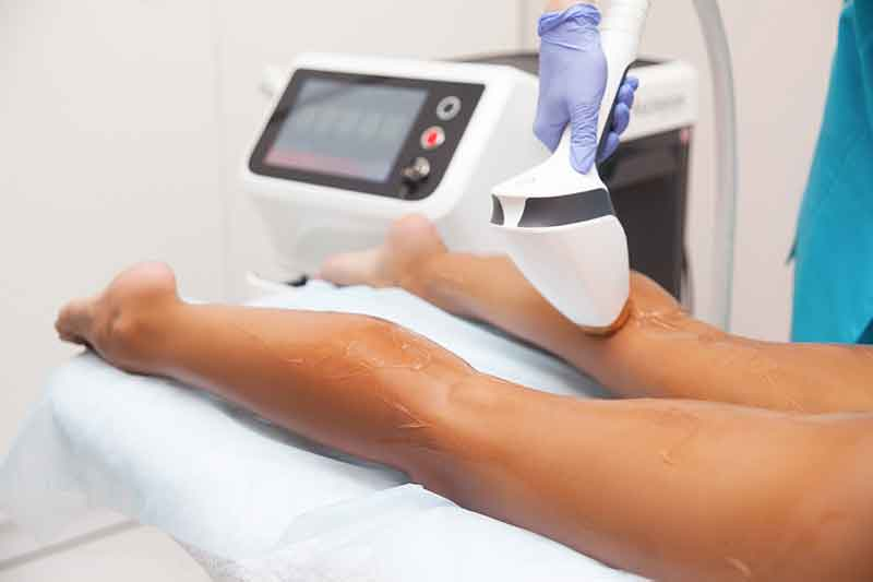 hair-removal-austin-tx
